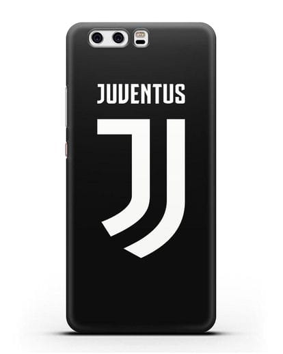 Чехол с логотипом и надписью Juventus силикон черный для Huawei P10 Plus