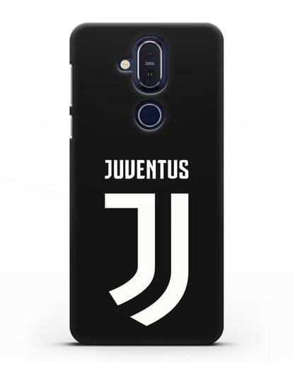 Чехол с логотипом и надписью Juventus силикон черный для Nokia 7.1 plus