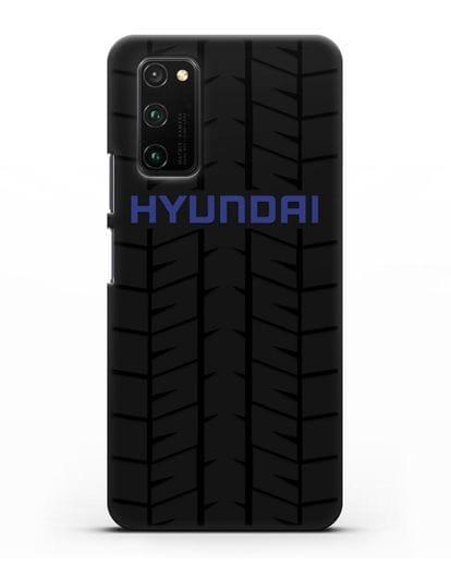 Чехол с логотипом Хёндэ с протектором шин силикон черный для Honor View 30 Pro