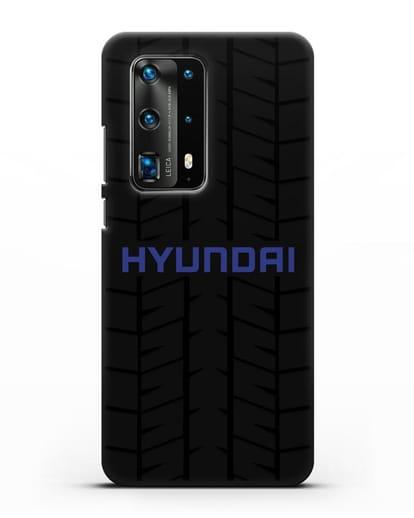 Чехол с логотипом Хёндэ с протектором шин силикон черный для Huawei P40 Pro